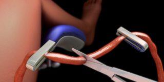 Donazione e conservazione del cordone ombelicale: cosa cambia con la nuova ordinanza del 4 Maggio 2007