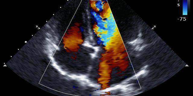 Eco doppler in gravidanza, come funziona l'esame che studia il flusso del sangue