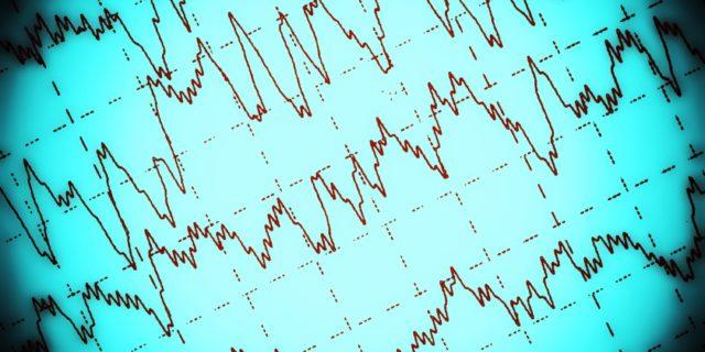 Elettroencefalogramma (EEG)