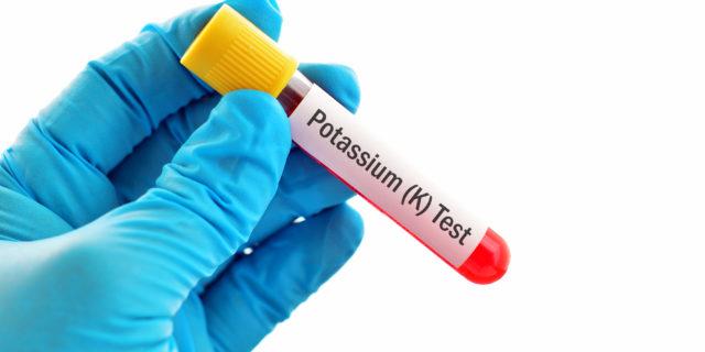 Potassiemia