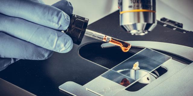 Esame microscopico delle urine: a cosa serve e cosa rileva