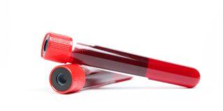 Antitrombina III