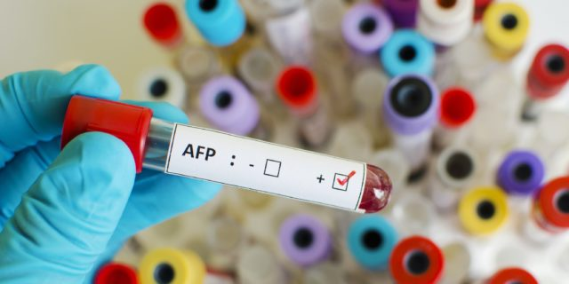 Alfafetoproteina (AFP)