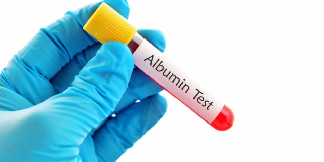 Albuminemia