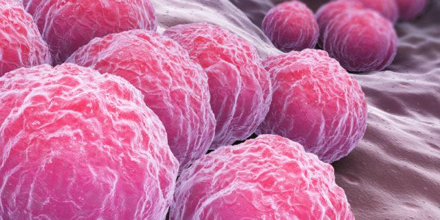 Clamidia, la malattia sessualmente trasmissibile pericolosa per il neonato