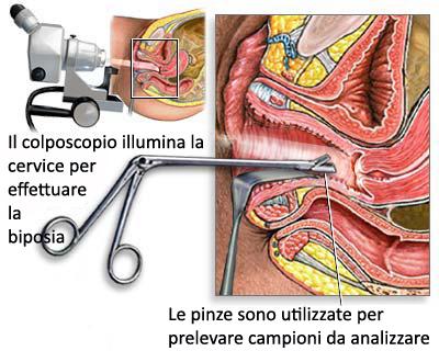 colposcopia