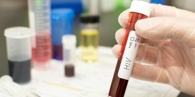 Test HIV in gravidanza: quando si fa e come funziona