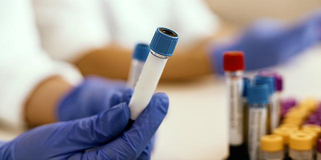 Elettroforesi sieroproteica: a cosa serve l'esame e quali sono i risultati