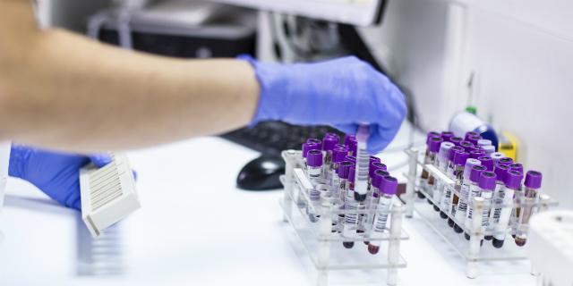 Rubeo test per la rosolia in gravidanza: quali sono i risultati