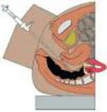 fertiloscopia002
