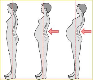 gravidanza-postura (1)