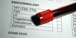 A cosa serve l'esame che misura l'ormone luteinizzante LH per la fertilità