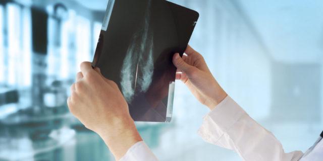 Ultraquarantenni: è consigliabile una mammografia all'anno