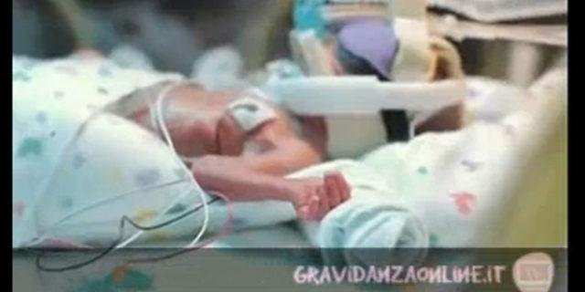 Bimbi prematuri: Ward Miles, il piccolo lottatore