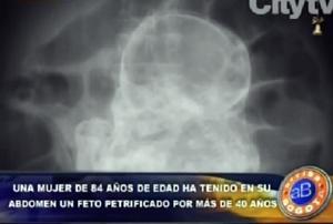 Colombia, 80enne incinta di un feto da 40 anni!