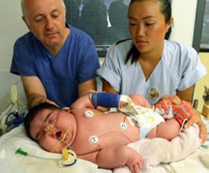Nascita record in Germania: bimba di 6,1 kg senza cesareo