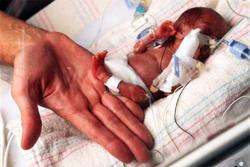 Nascite premature: c'è scarsa conoscenza dei fattori di rischio e delle complicanze