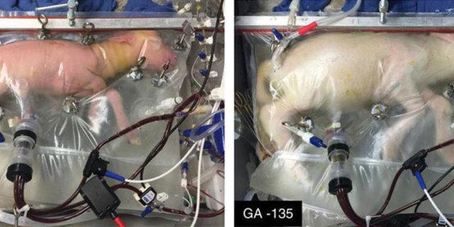 Usa, creato utero artificiale per i bimbi nati pretermine