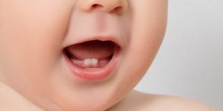 Dentini da latte: riconoscere i sintomi