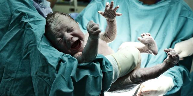 Come avviene il parto cesareo? La spiegazione punto per punto
