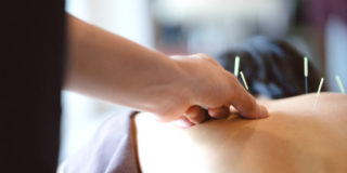 Agopuntura per favorire una gravidanza?