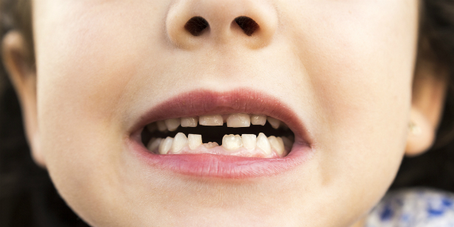"Come i denti da latte possono aiutare a ""riparare"" i denti da adulti"