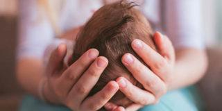 Cosa sono le craniostenosi, le malformazioni alla testa dei bambini