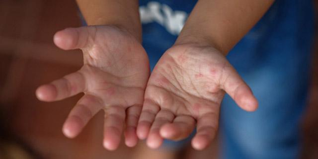 """Tutto quello che c'è da sapere sulla malattia """"mani piedi bocca"""""""