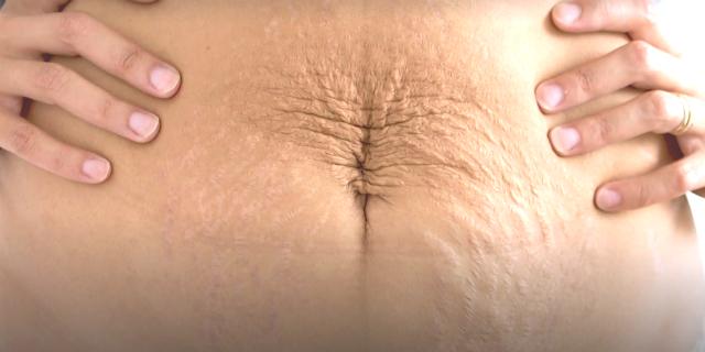 corpo dopo il parto
