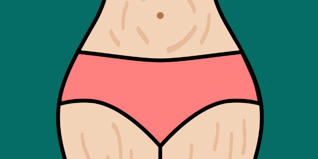 Le cose che succedono al corpo dopo il parto (ma nessuno dice)