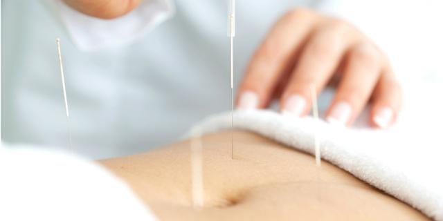 Fertilità: l'agopuntura aiuta davvero a restare incinta?