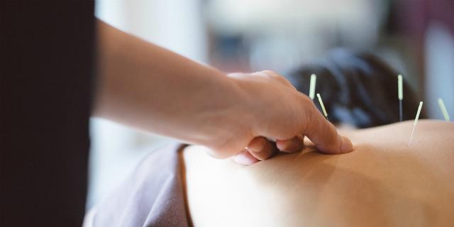 l'agopuntura e la pma