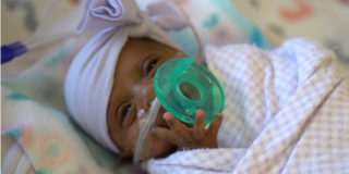 """Alla nascita pesava 245 grammi: la """"bambina più piccola del mondo"""" oggi sta bene"""