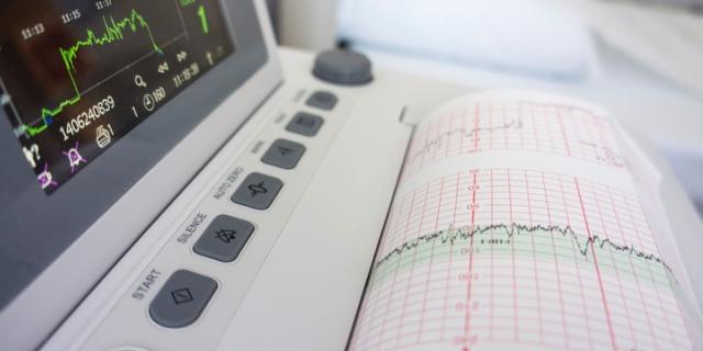 Come funziona l'elettrocardiogramma e perché farlo in gravidanza