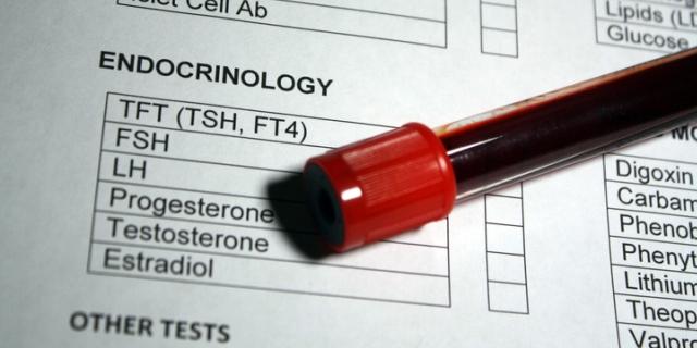 Dosaggio del progesterone: quando farlo e quali sono i valori