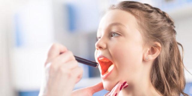 Placche in gola nei bambini: le indicazioni del pediatra