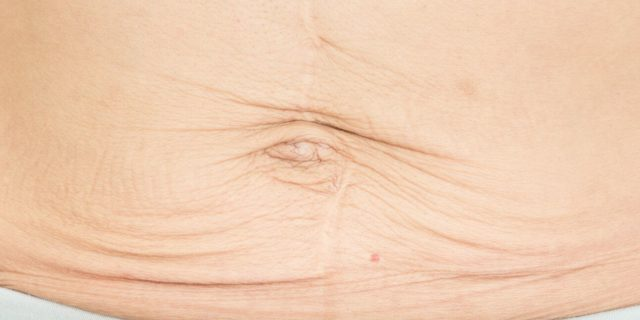 Pancia e seno dopo la gravidanza come cambiano? Possono tornare come prima?