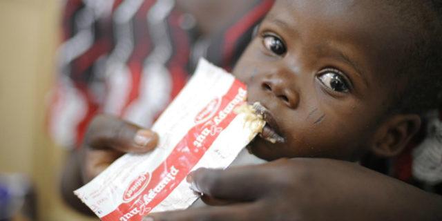 Unicef: oltre 6,7 milioni di bambini sotto i 5 anni malnutriti a causa del Covid