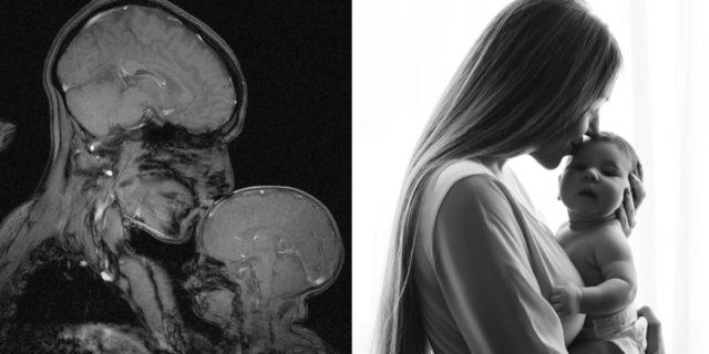 Il bacio della mamma riduce il mal di testa del bambino, lo dice la scienza