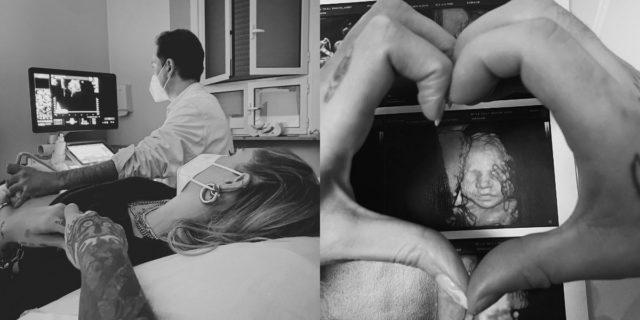 Chiara Ferragni e Fedez mostrano il viso della seconda figlia: a chi somiglia?