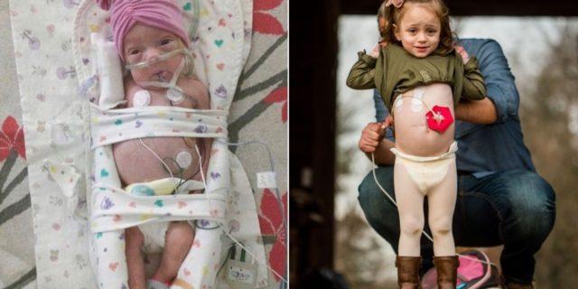 La forza di Addie Belle, la bimba nata con la sindrome dell'intestino corto