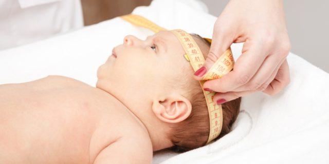 Scafocefalia, una delle più diffuse malformazioni del cranio dei bambini