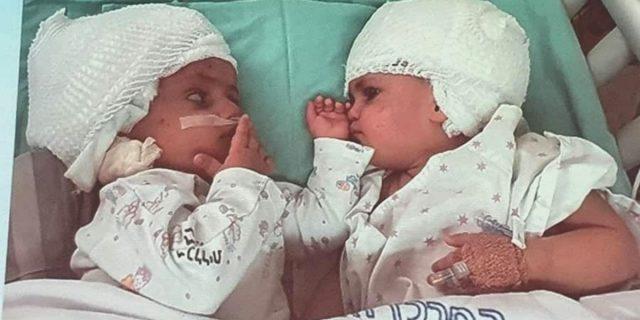 La dolcezza del primo sguardo tra le gemelline siamesi separate dopo un anno
